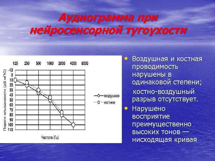 Аудиограмма при нейросенсорной тугоухости • Воздушная и костная • проводимость нарушены в одинаковой степени;
