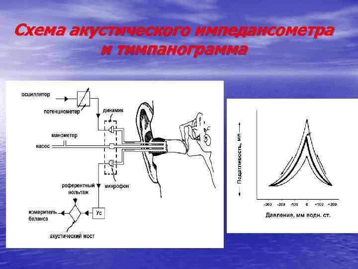 Схема акустического импедансометра и тимпанограмма