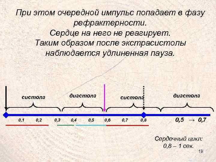 При этом очередной импульс попадает в фазу рефрактерности. Сердце на него не реагирует. Таким