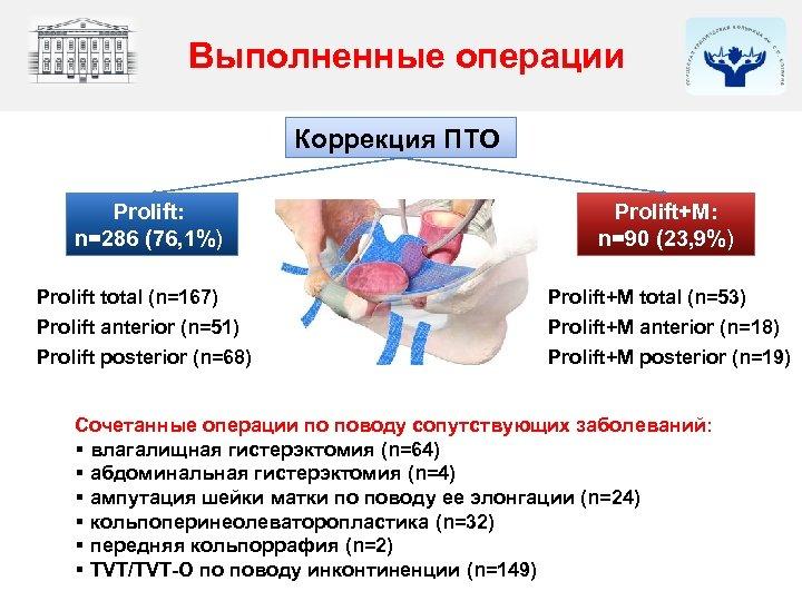 Выполненные операции Коррекция ПТО Prolift: n=286 (76, 1%) Prolift+М: n=90 (23, 9%) Prolift total