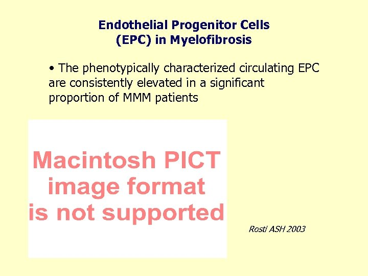 Endothelial Progenitor Cells (EPC) in Myelofibrosis • The phenotypically characterized circulating EPC are consistently