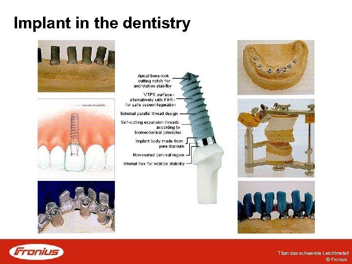 Implant in the dentistry Titan das schwerste Leichtmetall © Fronius