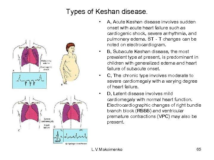 Types of Keshan disease. • • A, Acute Keshan disease involves sudden onset with