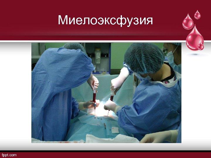 Миелоэксфузия