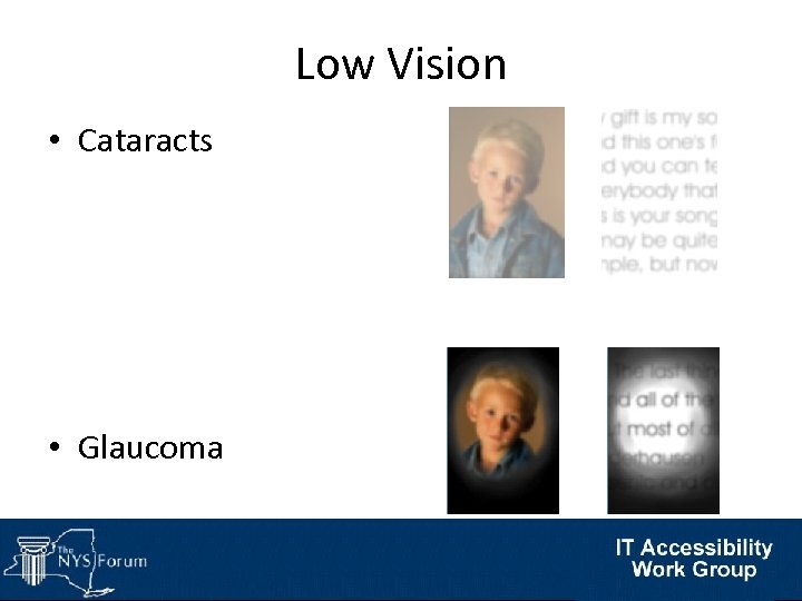 Low Vision • Cataracts • Glaucoma