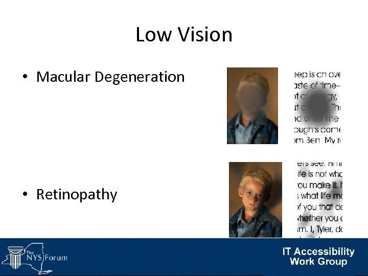 Low Vision • Macular Degeneration • Retinopathy