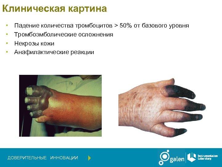 Клиническая картина • • Падение количества тромбоцитов > 50% от базового уровня Тромбоэмболические осложнения