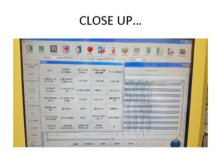 CLOSE UP…