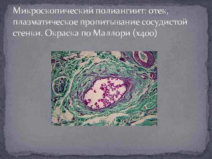 Микроскопический полиангиит: отек, плазматическое пропитывание сосудистой стенки. Окраска по Маллори (х400)
