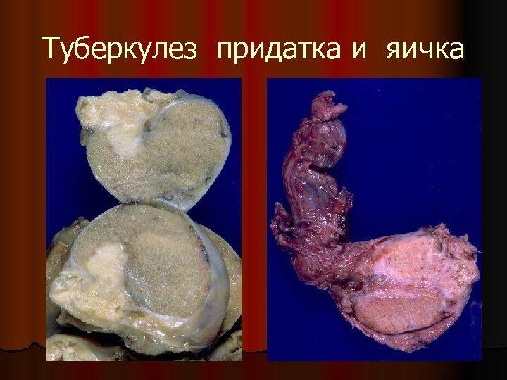 Туберкулез придатка и яичка