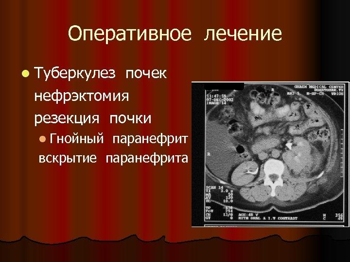 Оперативное лечение l Туберкулез почек нефрэктомия резекция почки l Гнойный паранефрит вскрытие паранефрита