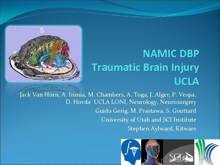 NAMIC DBP Traumatic Brain Injury UCLA Jack Van Horn, A. Irimia, M. Chambers, A.