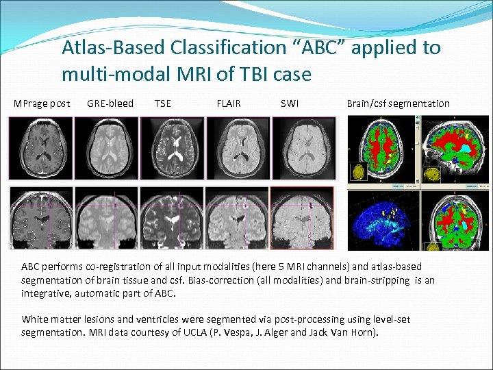 "Atlas-Based Classification ""ABC"" applied to multi-modal MRI of TBI case MPrage post GRE-bleed TSE"