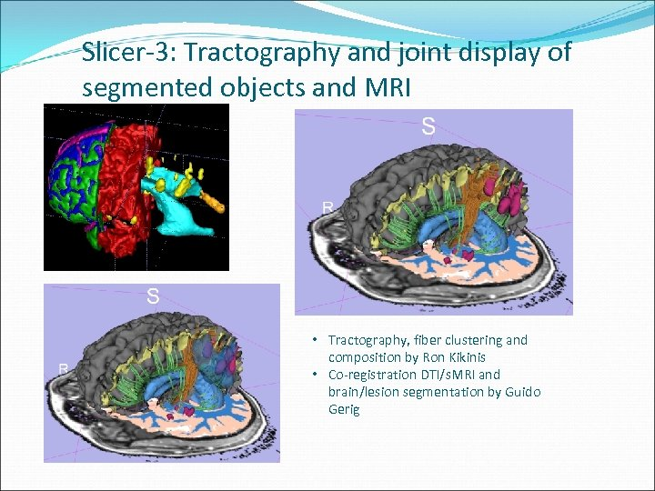 Slicer-3: Tractography and joint display of segmented objects and MRI • Tractography, fiber clustering