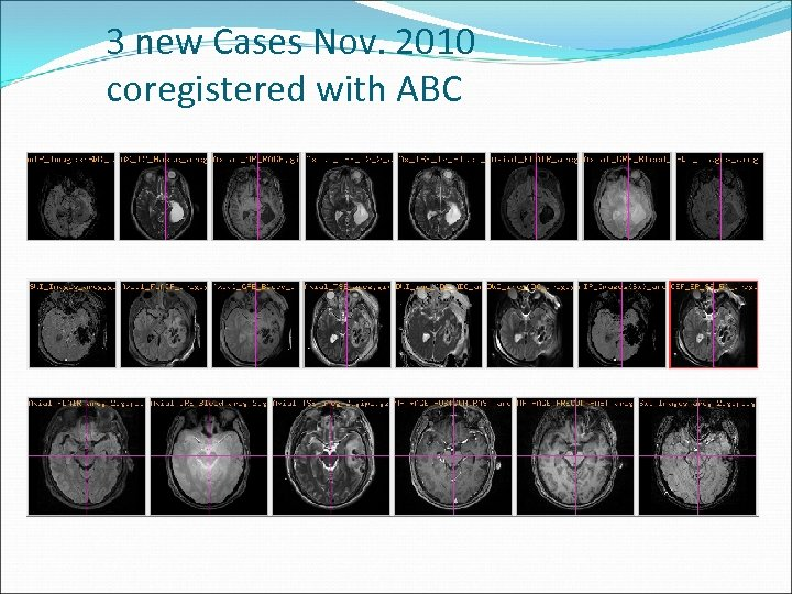 3 new Cases Nov. 2010 coregistered with ABC