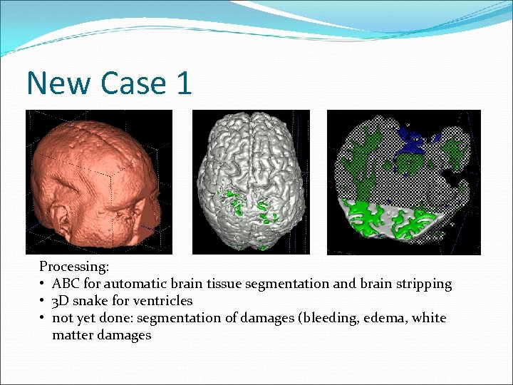 New Case 1 Processing: • ABC for automatic brain tissue segmentation and brain stripping
