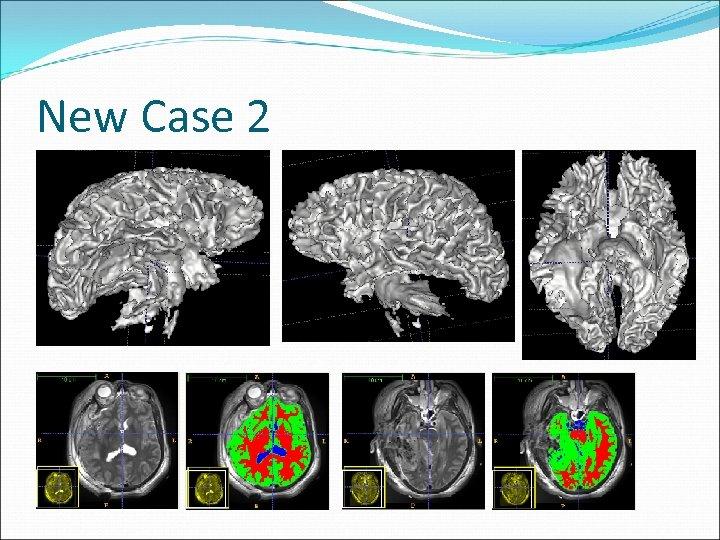 New Case 2
