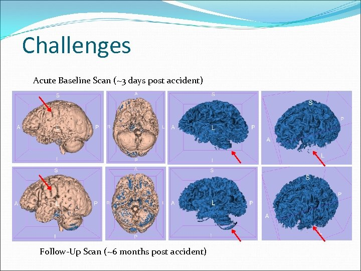 Challenges Acute Baseline Scan (~3 days post accident) Follow-Up Scan (~6 months post accident)