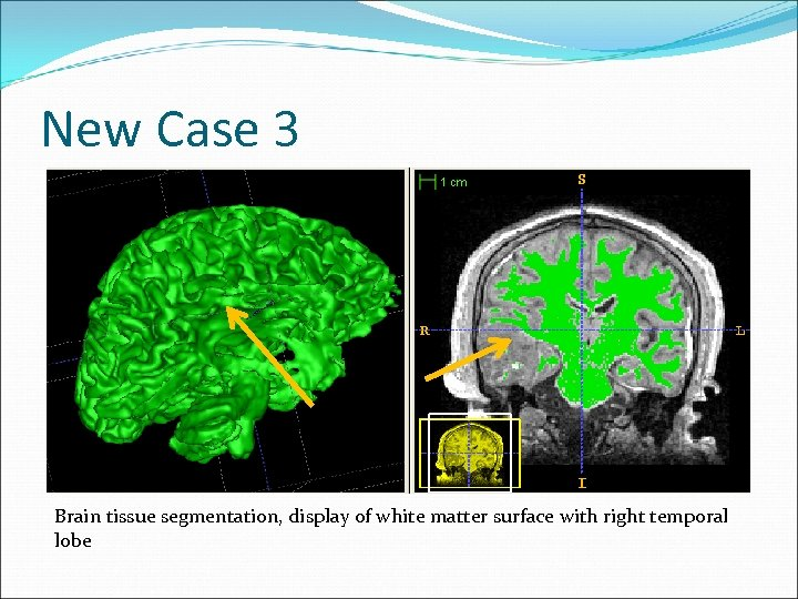 New Case 3 Brain tissue segmentation, display of white matter surface with right temporal