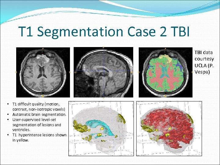 T 1 Segmentation Case 2 TBI data courtesy UCLA (P. Vespa) • T 1