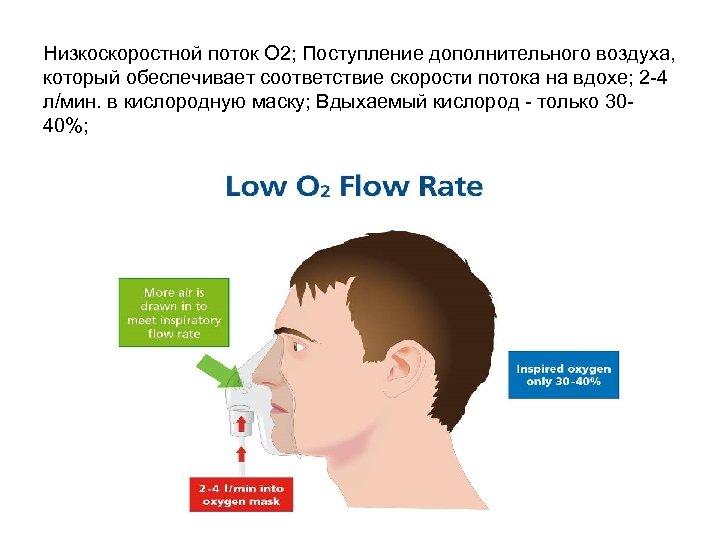 Низкоскоростной поток О 2; Поступление дополнительного воздуха, который обеспечивает соответствие скорости потока на вдохе;