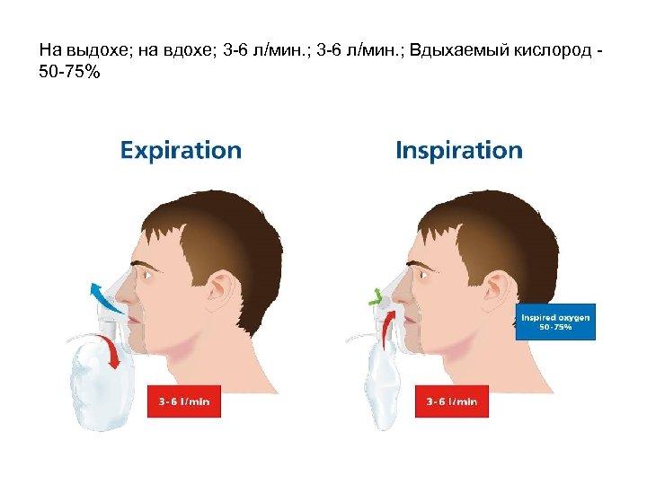 На выдохе; на вдохе; 3 -6 л/мин. ; Вдыхаемый кислород 50 -75%