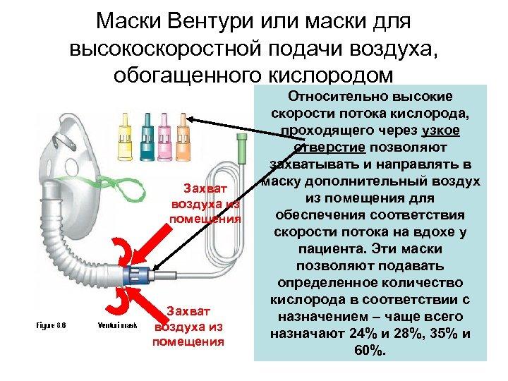 Маски Вентури или маски для высокоскоростной подачи воздуха, обогащенного кислородом Захват воздуха из помещения