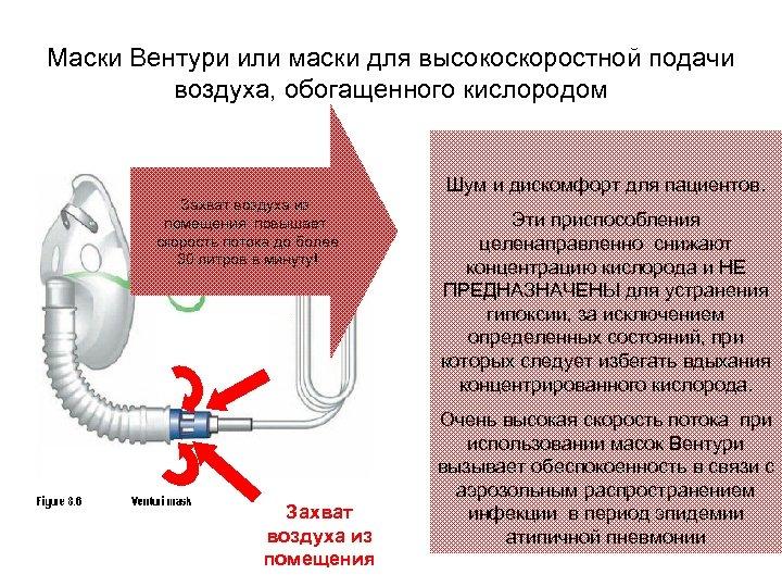 Маски Вентури или маски для высокоскоростной подачи воздуха, обогащенного кислородом Шум и дискомфорт для