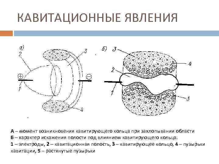 КАВИТАЦИОННЫЕ ЯВЛЕНИЯ А – момент возникновения кавитирующего кольца при захлопывании области Б – характер