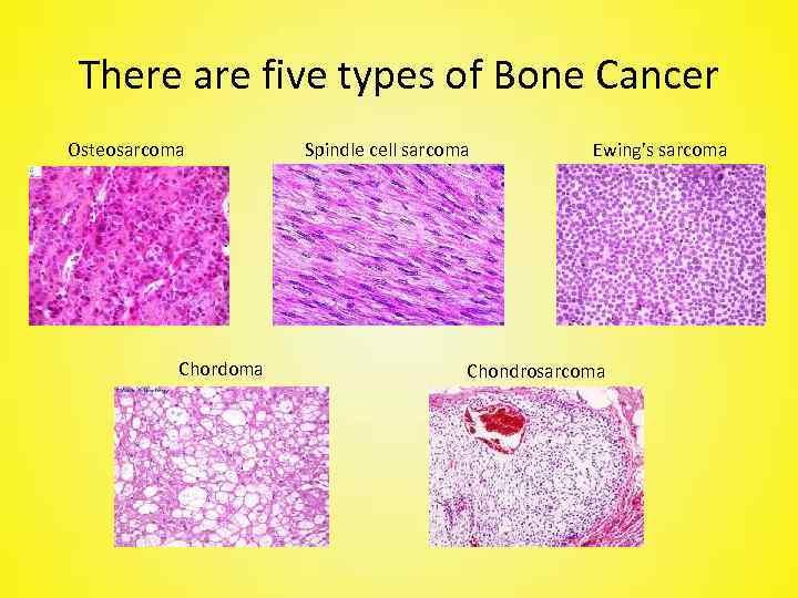 There are five types of Bone Cancer Osteosarcoma Chordoma Spindle cell sarcoma Ewing's sarcoma