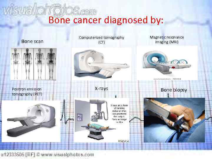 Bone cancer diagnosed by: Bone scan Positron emission tomography (PET) Computerized tomography (CT) X-rays