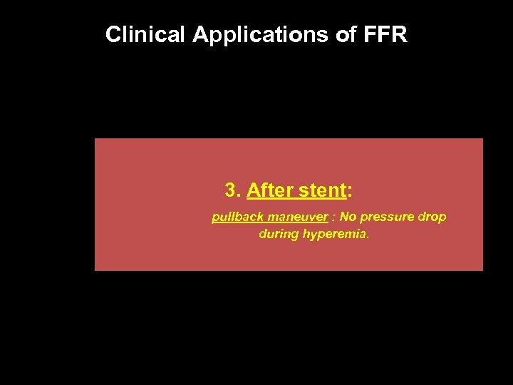 Clinical Applications of FFR 3. After stent: pullback maneuver : No pressure drop during
