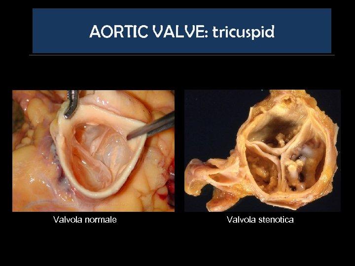 AORTIC VALVE: tricuspid Valvola normale Valvola stenotica