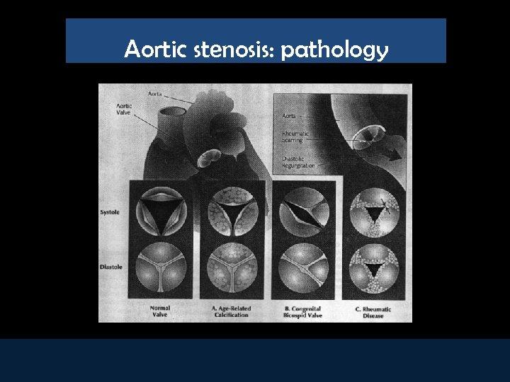 Aortic stenosis: pathology