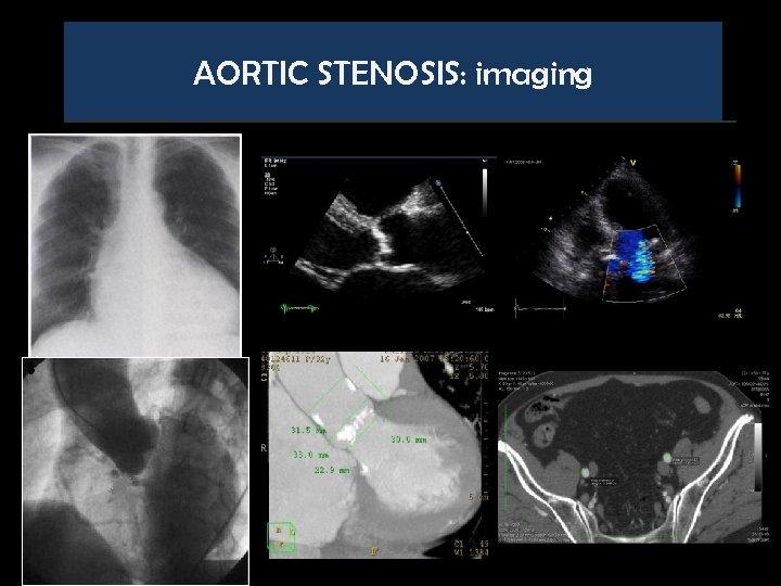 AORTIC STENOSIS: imaging