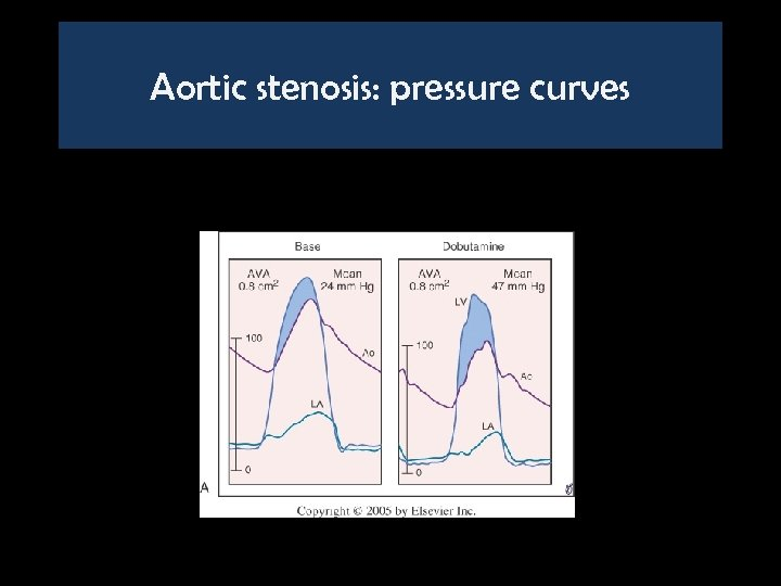 Aortic stenosis: pressure curves