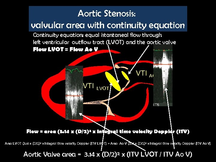 Aortic Stenosis: valvular area with continuity equation Continuity equation: equal istantaneal flow through left