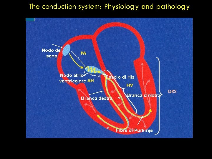 The conduction system: Physiology and pathology Nodo del seno Nodo atrioventricolare Fascio di His