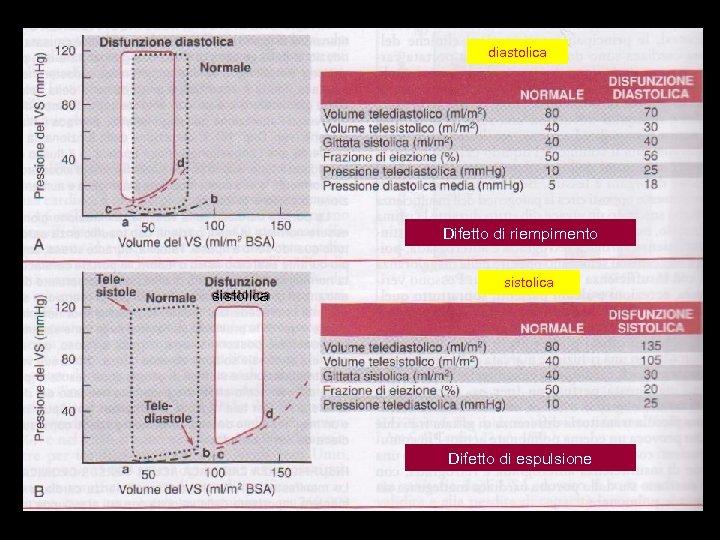 diastolica Difetto di riempimento sistolica Difetto di espulsione