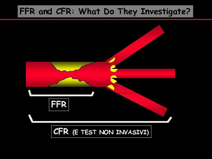 FFR and CFR: What Do They Investigate? FFR CFR (E TEST NON INVASIVI)