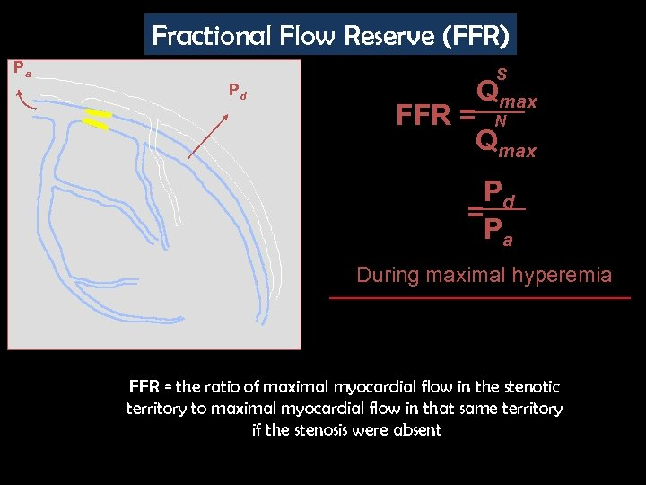 Fractional Flow Reserve (FFR) Pa Pd S Qmax FFR = N Qmax Pd =