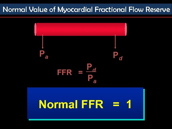 Normal Value of Myocardial Fractional Flow Reserve Pa Pd Pd FFR = Pa Normal