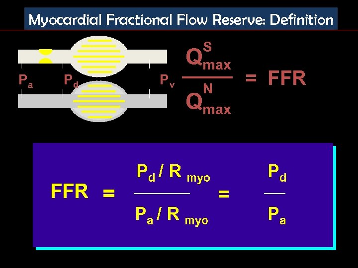 Myocardial Fractional Flow Reserve: Definition Pa Pd FFR = Pv S Qmax N =