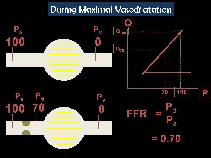 During Maximal Vasodilatation Q Pa Pv 100 Pa 0 Pd 100 70 Pv 0