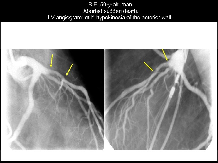 R. E. 50 -y-old man. Aborted sudden death. LV angiogram: mild hypokinesia of the