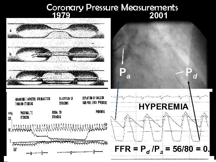 Coronary Pressure Measurements 1979 2001 Pa Pd HYPEREMIA FFR = Pd /Pa = 56/80