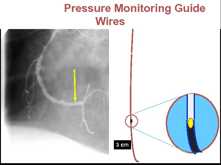 "Pressure Monitoring Guide Wires 0. 014"" 3 cm"