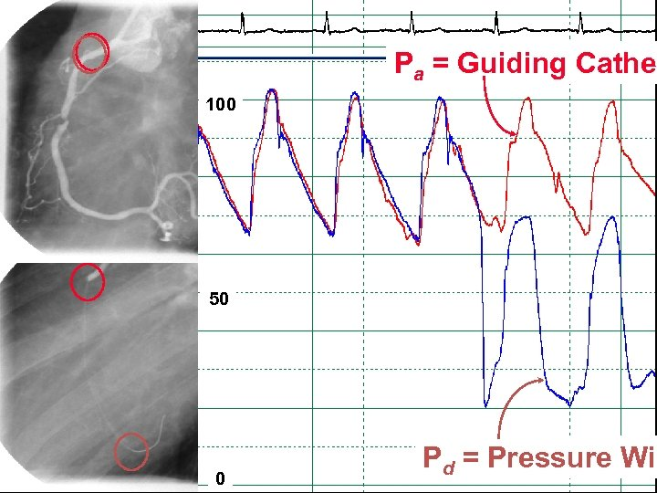 Pa = Guiding Cathet 100 50 0 Pd = Pressure Wir