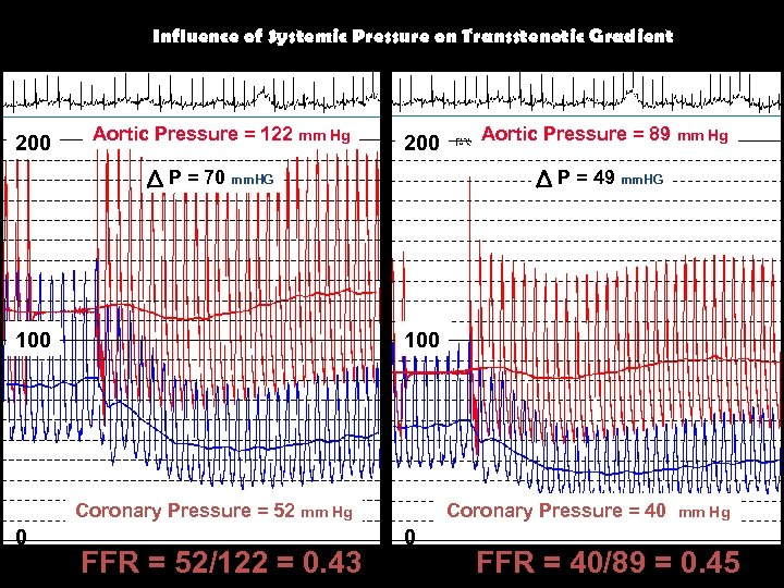Influence of Systemic Pressure on Transstenotic Gradient 200 Aortic Pressure = 122 mm Hg