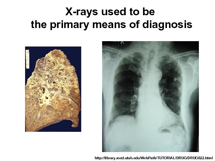 X-rays used to be the primary means of diagnosis http: //library. med. utah. edu/Web.